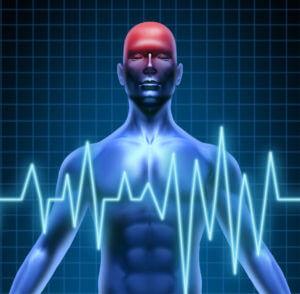 Home Health Care in Daphne AL: Transient Ischemic Attack TIA's