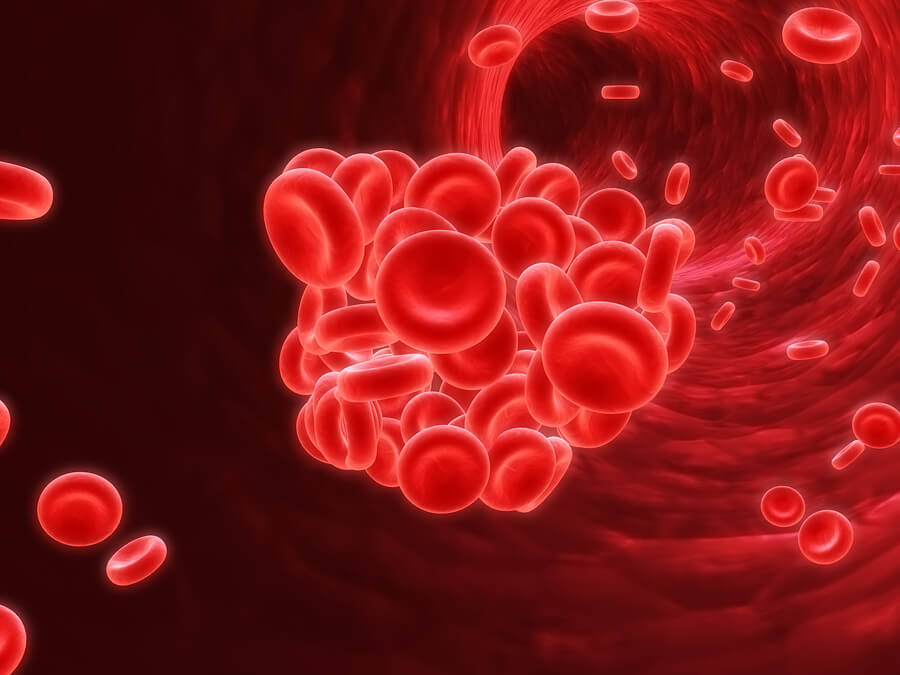 Home Health Care in Gulf Shores AL: Blood Clots