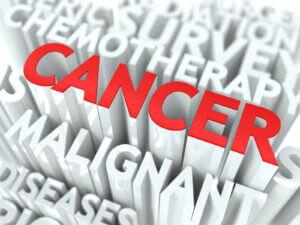 Caregiver in Spanish Fort AL: Cancer Information